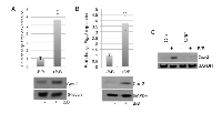 Figure 2:  Tumor cell derived factors induce Cox-2 expression in macrophages in an ADAM17-dependent manner.