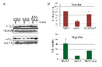Figure 1: Expression of mdig in human pancreatic cancer cell lines.