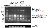Figure 2:  Expression and alternative splicing of mdig mRNA in pancreatic cancer cell line.