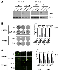 Figure 4:  MCAM promotes colony growth and transendothelial invasion in FN-RMS and FP-RMS cells.