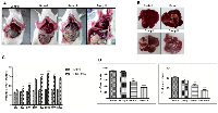 Figure 1: DEN+CCl4 induced hepatocarcinogenesis was associated with visceral adiposity.