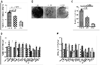 Figure 8:  Pharmacological inhibition of SHH signaling pathway is associated with decreased tumorigenicity of Hep3B  cell-line in soft-agarose assay.