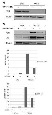 Figure 1: The effect of glucose availability on the  expression of PTEN and p53 in WRO and in FTC133  cells.